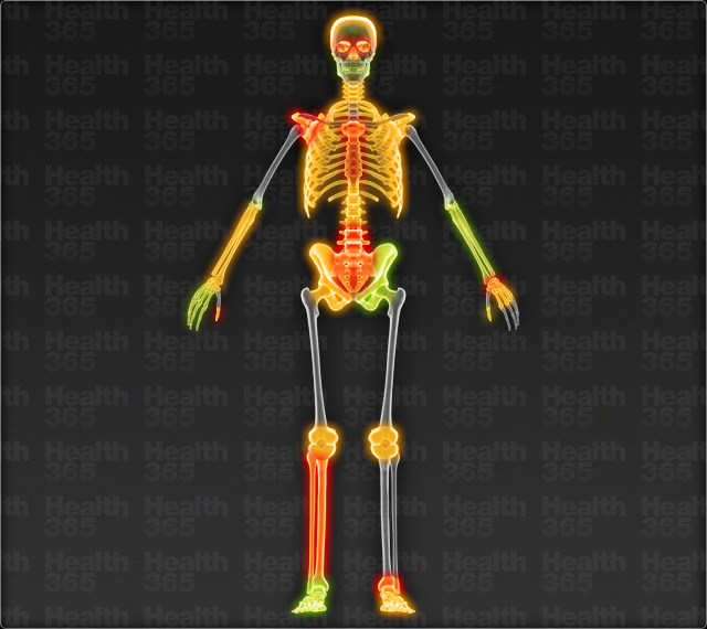 Ouch Map - skeleton